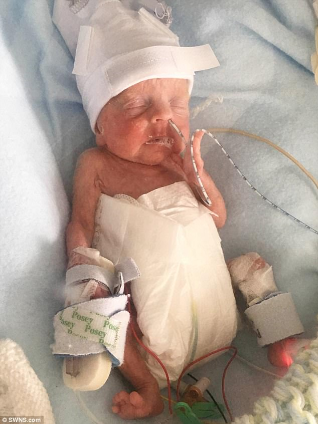 Meet the miracle baby boy born at 22 WEEKS | Daily Mail Online