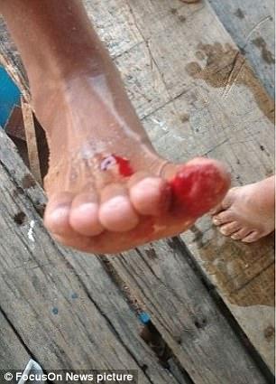 Daniele Cardosa was bitten on her second toe