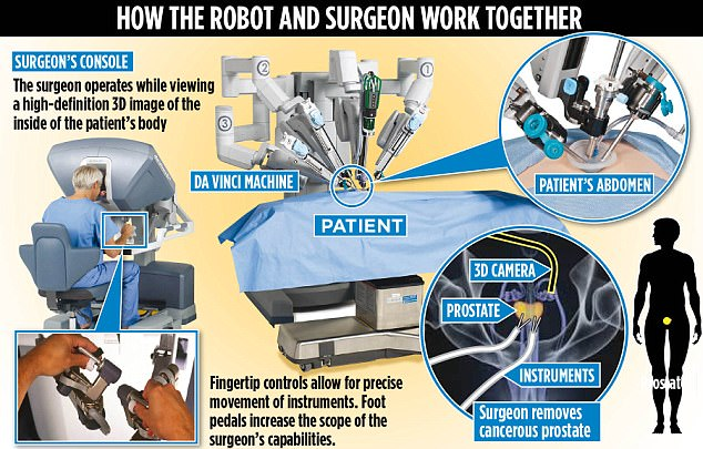 Diagram shows how robotic surgery works in prostate cancer patients