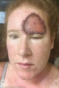 Melanoma leaves women with huge open wound on her forehead ...