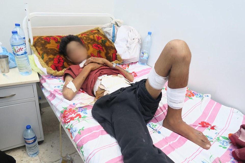Usama, un niño de 14 años, sufrió lesiones masivas durante el presunto ataque con bomba de racimo