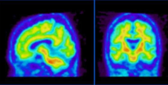 Brain scanning (file pic) technology is advancing rapidly. The day will come when we can detect awareness at the bedside (or even at the roadside) - reliably, cheaply and efficiently