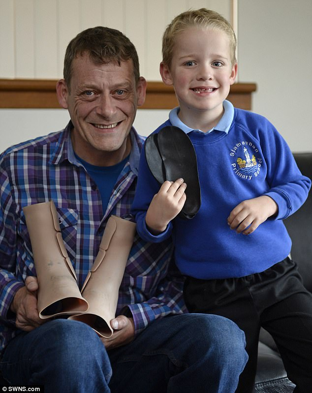 Andrew Frerich and son Calum both have Charcot-Marie-Tooth disease (CMT), which is a group of inherited conditions that damage the peripheral nerves