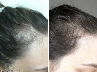 Melbourne blogger fixed hair loss after mental breakdown ...
