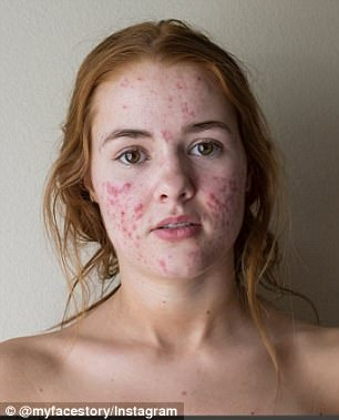 Kali Kushner, 22, is open on her account about her skin transformation and how she was able to find confidence in areas of her life that don't involve physical beauty