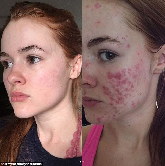 Kushner tried many different drugs and treatments to improve her acne. One treatment she tried was the oil cleansing method. But the method didn't work for Kushner. She posted this in April to show her followers how far her skin has come