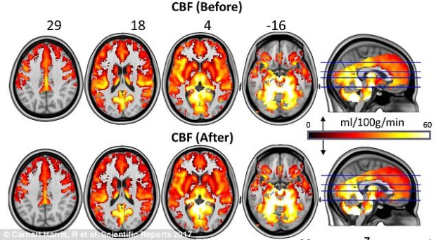 The researchers took scans of the brains of the study participants and saw that the default mode network (top row) became temporarily disintegrated during a psilocybin 'trip,' but reintegrated with greater stability after the experience (bottom)