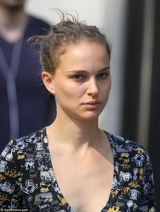 The Black Swan star revealed she has suffered acne in the past which occurs when hair follicles are clogged with dead skin cells and oil from the skin