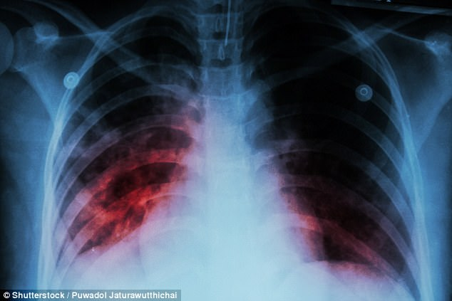 A tuberculosis outbreak in Ramsey Country, Minnesota, has infected 17 people and killed six