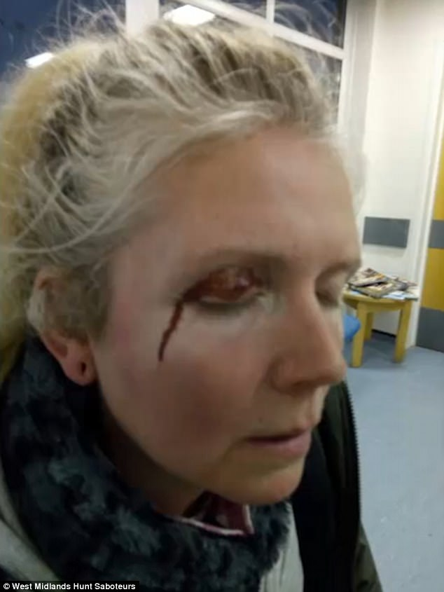 The bloodied female hunt saboteur was left with a cut eye which needed hospital treatment