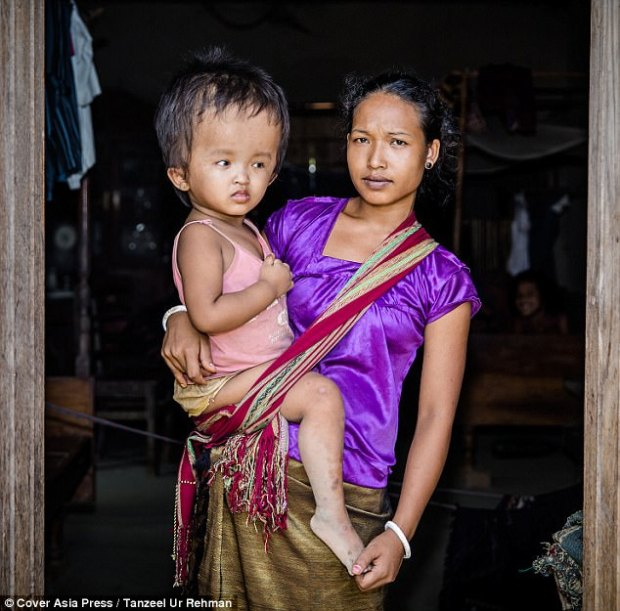 The little girl has hydrocephalus, which can cause permanent brain damage and can be fatal