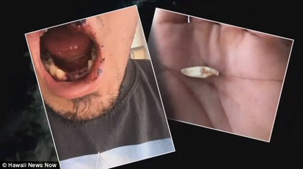 Matt Yamashita dijo que requerirá una cirugía extensa para reparar el daño en sus dientes