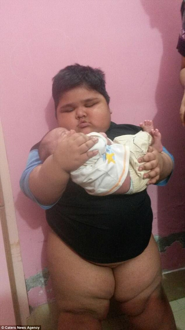 Doctors have assured Muhammad's worried parents he will half his weight within a year