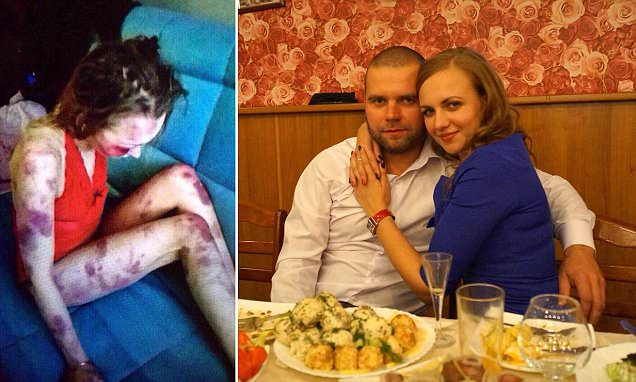 Image result for Russian boasted about beating wife before she died of her injuries