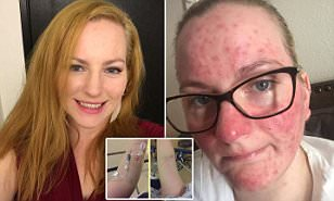 Mother claims the flu vaccine destroyed her life | Daily Mail Online