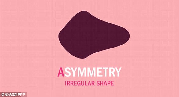 Check for asymmetrical moles that have an irregular shape