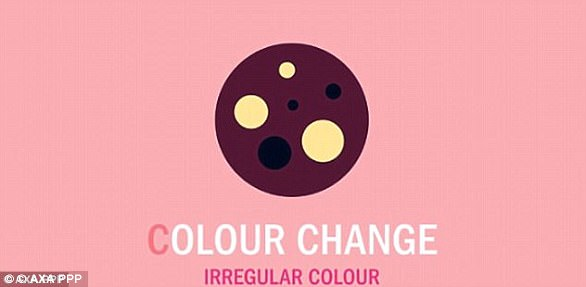 Moles that change colour or have a different colours within them should be looked over