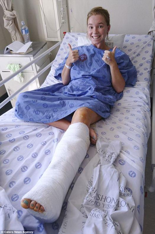Marelize terminó por dislocarse el tobillo y romperse la pierna en dos lugares después de que su pierna quedó atrapada entre dos rocas