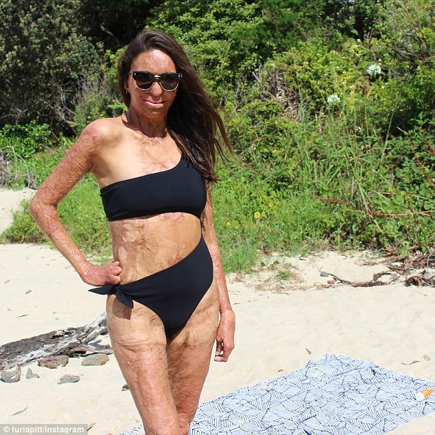 Turia Pitt Poses In A Bikini Before Covering Up In A Shirt