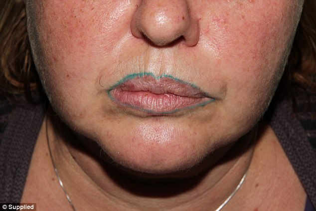 Tattoo Lip Liner Turns Green After Cosmetic Surgery