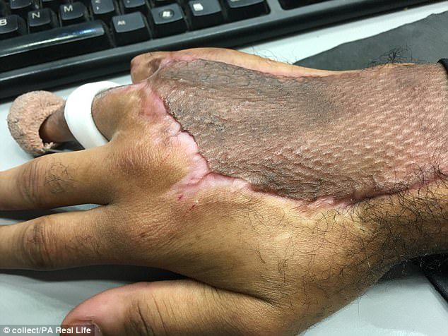 He also had a skin graft to replace skin from his thigh on to his hand and fingers