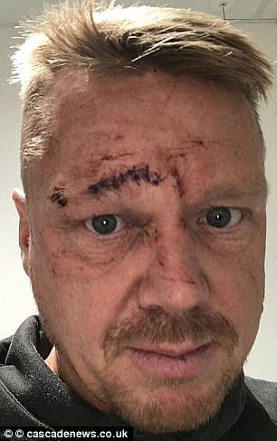 Mr Cairns was attacked by Connolly after they shared three bottles of wine and had a row about television
