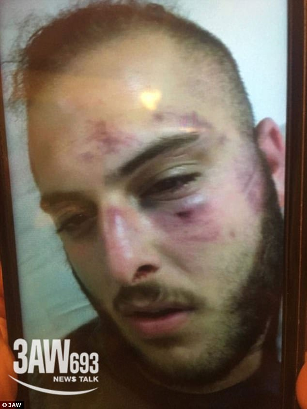 Video filmed on a guest's mobile phone shows both male and female passengers erupt into an all-in brawl as cruise security attempted to intervene, leaving some victims with savage bruises and cuts. Pictured: One passenger named Michael