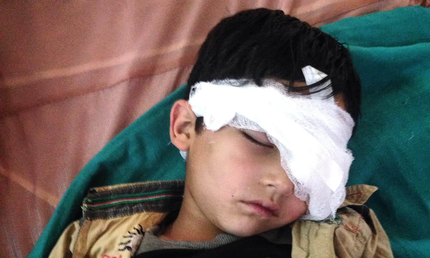 Image result for 'IOK Regime Has No Records of Those Who Lost Eyesight to Pellets'