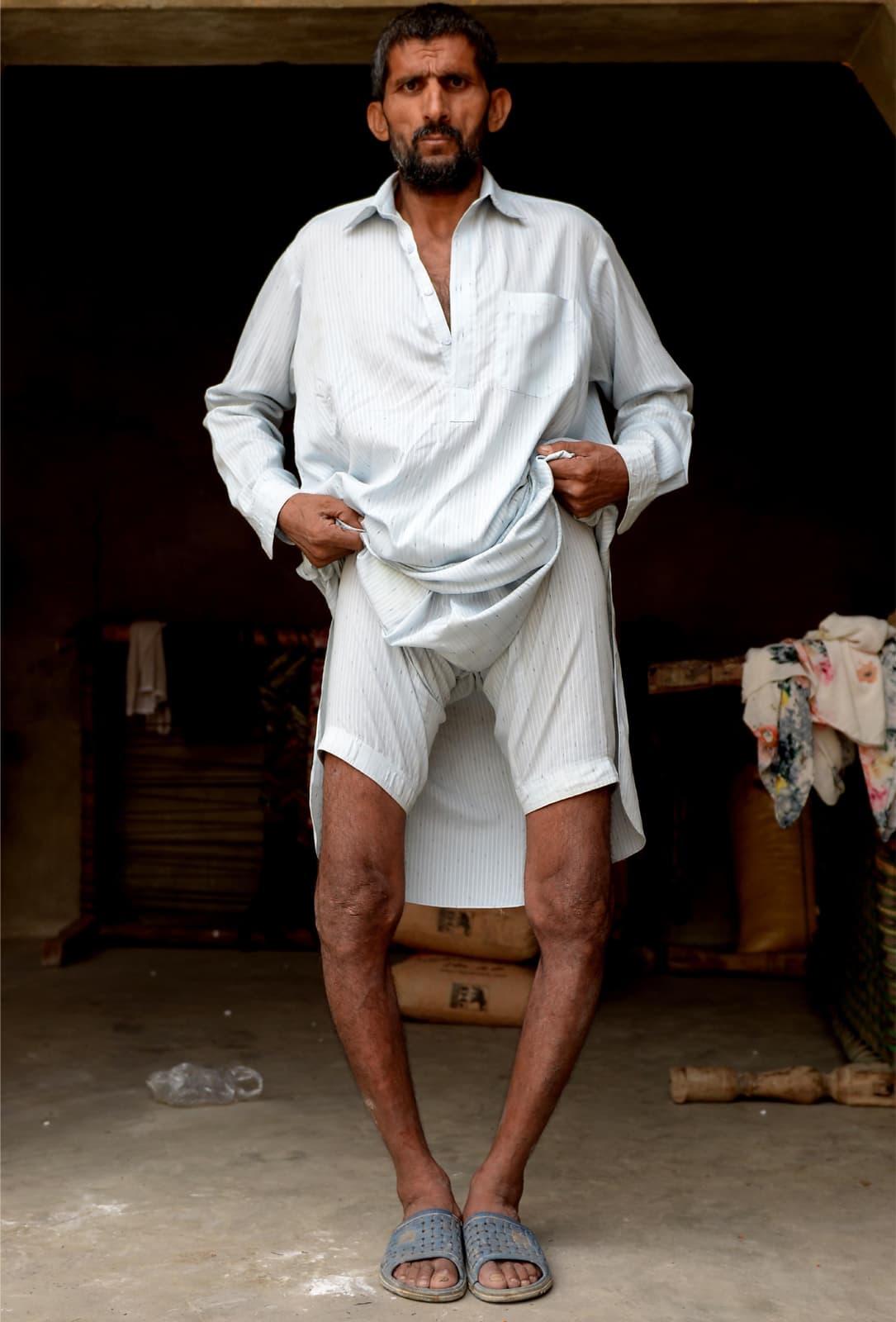 Amir Mir Ali shows his deformed knees