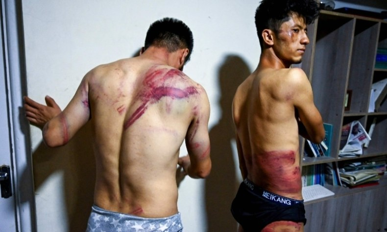 In this picture taken on September 8, Afghan newspaper Etilaatroz journalists Neamat Naqdi (L) and Taqi Daryabi show their wounds in their office in Kabul after being released from Taliban custody.— AFP
