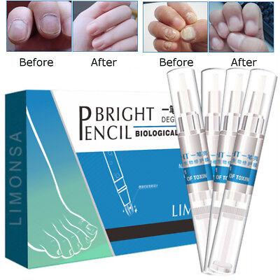 4tlg. gegen Nagelpilz Nagelpflege Stift Nagelbehandlung Anti mykotische Fungus