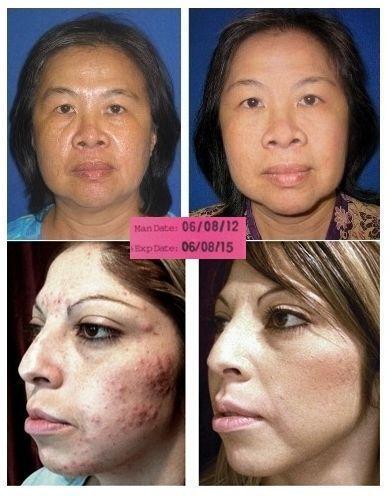 Retinol Cream Facial Skin Care eBay