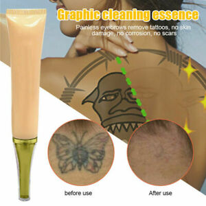 2019 Permanent Tattoo Removal Cream No Need For Pain ...