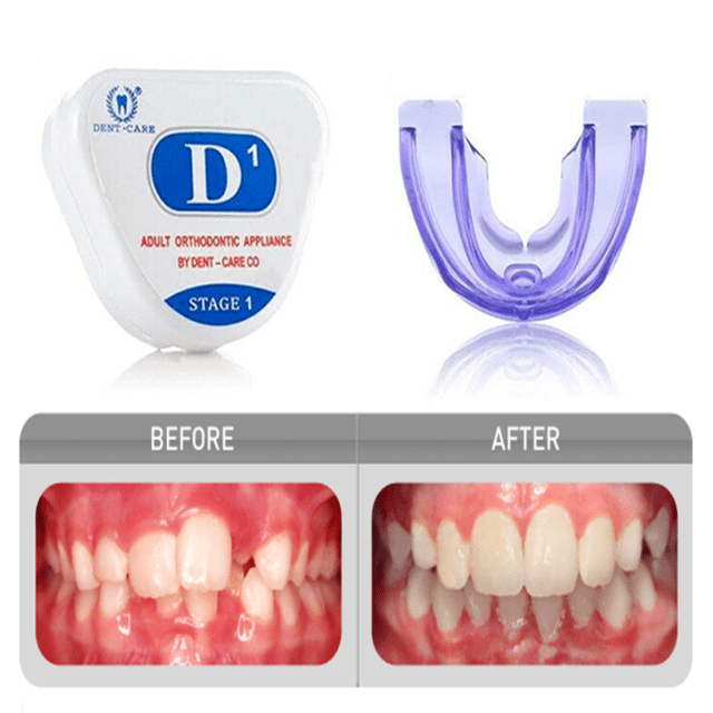 Myobrace Teeth Whitening Tooth Orthodontics Invisible ...