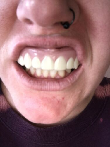 Imako Teeth : imako, teeth, Natural, Imako, Cosmetic, Smile, Custom, Teeth, Online