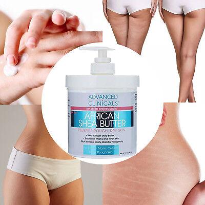 Crema para Estrias y Celulitis elimina y previene marcas ...