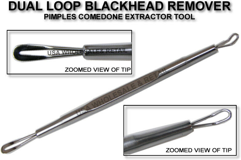 1 Blackhead Remover Comedone Extractor Tool With Dual Loop