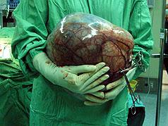 婦女以為增胖 手術取出卵巢瘤重4.5公斤 | 大紀元