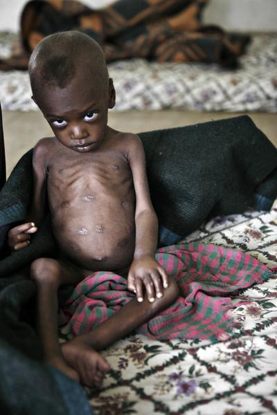 聯合國:非洲之角兒童極度營養不良 | 大紀元