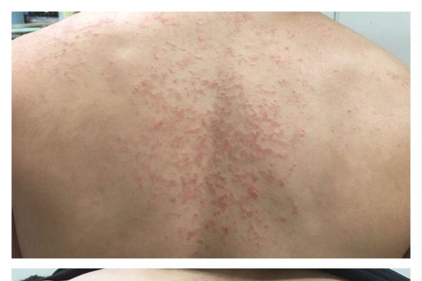 色素性癢疹誤為濕疹 後背有如紅色圓網 | 毛囊炎 | 蕁麻疹 | 大紀元