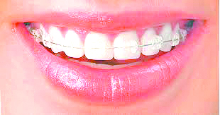Clarity™陶瓷牙齒矯正器 助孩子擁有自信的微笑   3M Unitek   大紀元