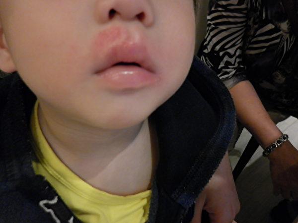 皮膚紅腫抓癢 幼童易併發病毒感染   異位性皮膚炎   大紀元