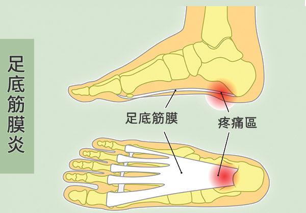 腳踩地像針扎?3招改善足底筋膜炎 跟腳痛拜拜 | 腳跟疼痛 | 大紀元