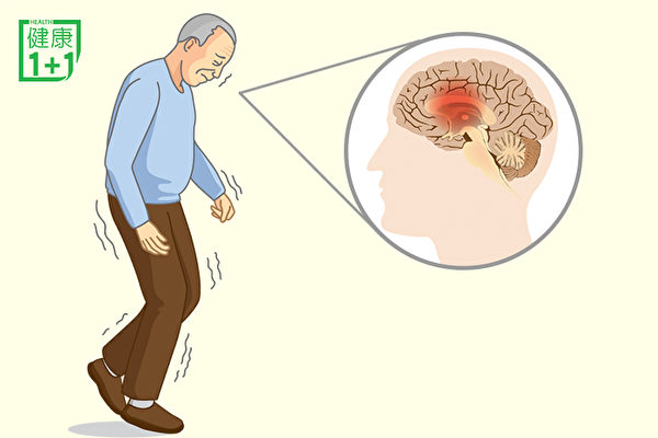 帕金森讓大腦退化!常做2件事預防,改善 | 左旋多巴 | 帕金森治療 | 帕金森癥狀 | 大紀元
