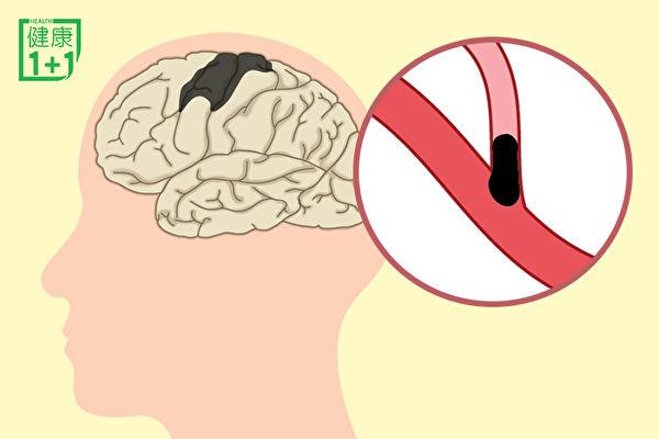 腦梗塞是最常見的腦中風!中年後做到3點能預防 | 預防腦梗塞 | 缺血性腦中風 | 運動 | 大紀元