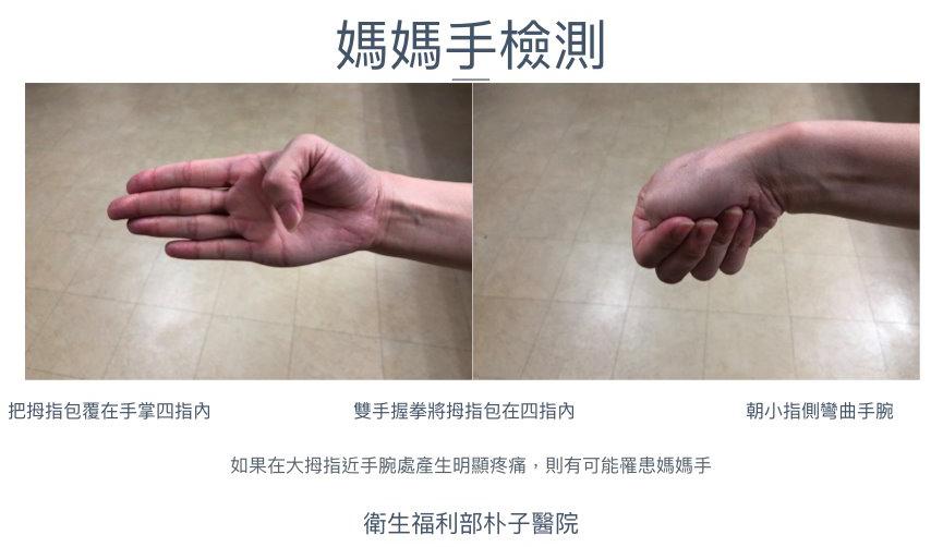 包粽子別讓媽媽手累壞!2步檢測「媽媽手」 | 狹窄性肌腱滑膜炎 | 拇指 | 大紀元