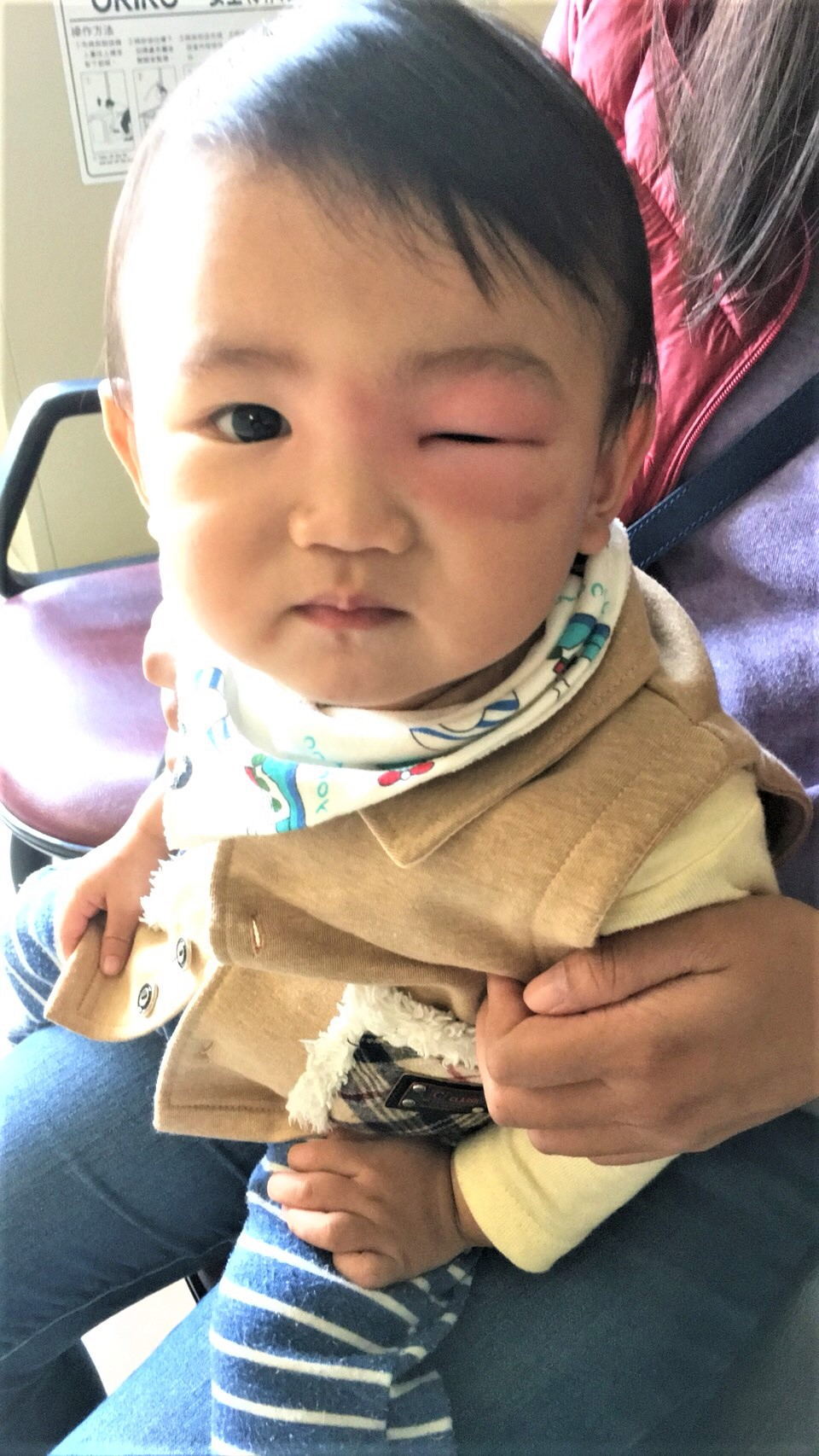 爸媽別輕忽!4歲童險死 蚊子禍害超乎想像 | 蜂窩性組織炎 | 壞死性筋膜炎 | 噬肉菌感染 | 大紀元