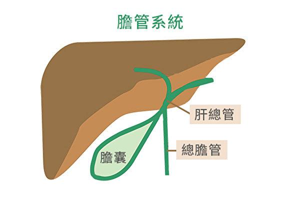 膽管癌罕見但致命,為何在亞裔中更常發生? | 寄生蟲 | 膽管炎 | 膽管結石 | 大紀元