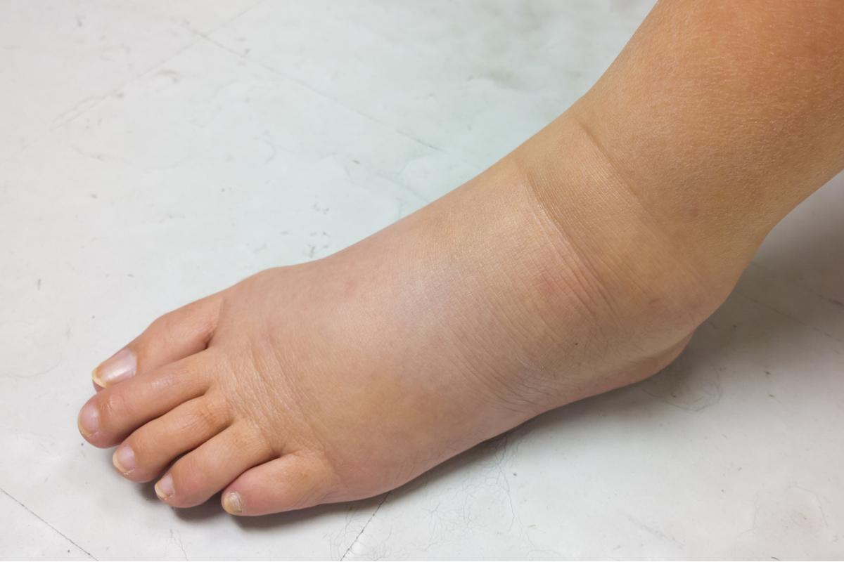 一到晚上就腳水腫?水腫5類癥狀立刻就醫 | 腳腫 | 水腫癥狀 | 喝水 | 大紀元