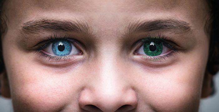 美國母子患罕見眼疾 瞳孔呈雙色異常美麗 | 虹膜異色癥 | 藍色 | 棕色 | 大紀元